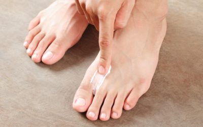 man applying athletes foot cream