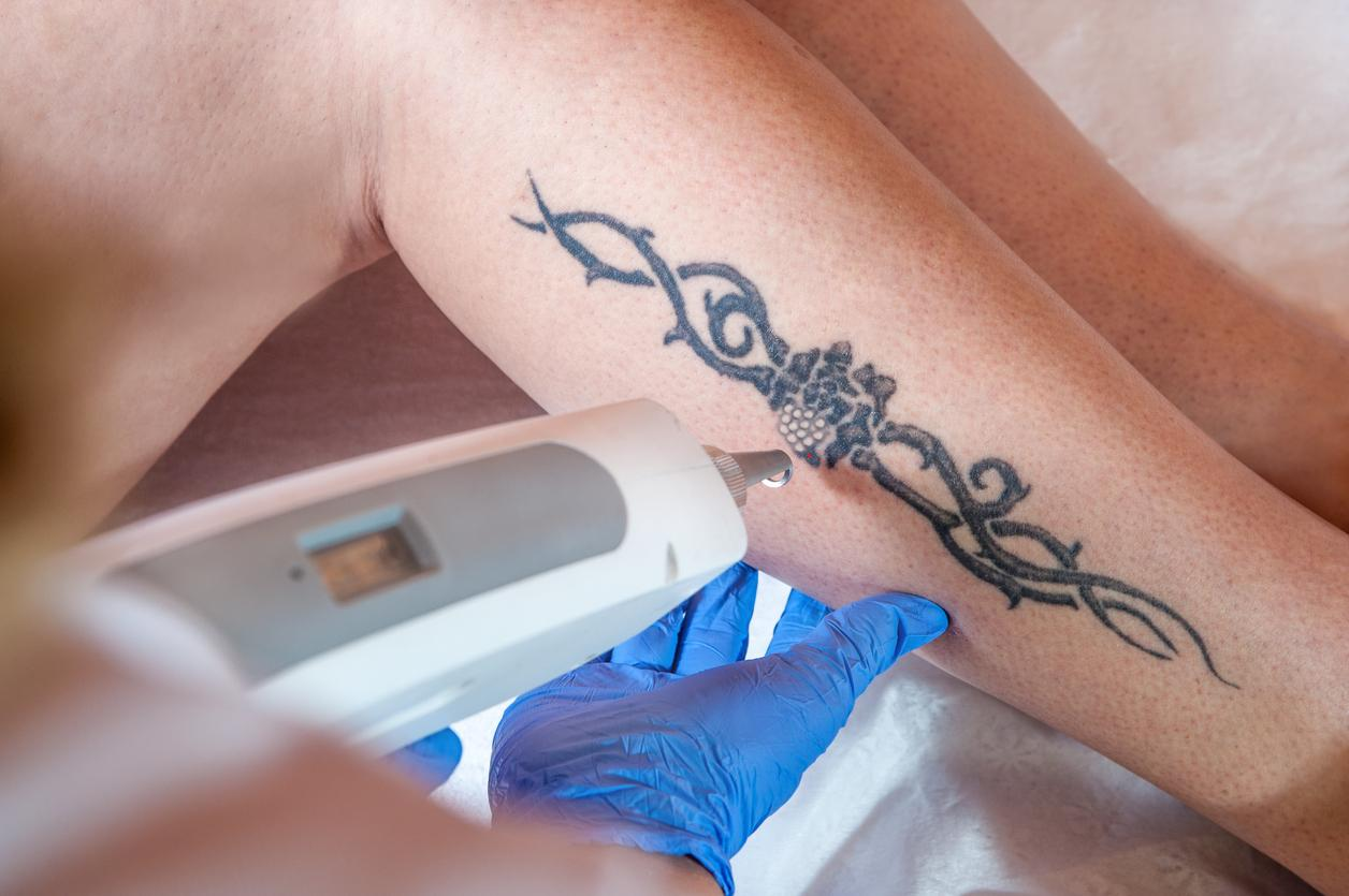 patient gettingLaser Tattoo Removal on her leg