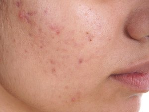 patient with acne