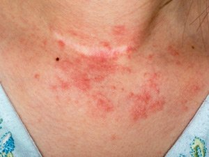 patient with Atopi Dermatitis