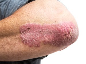 Patient with Psoriosis on their forearm
