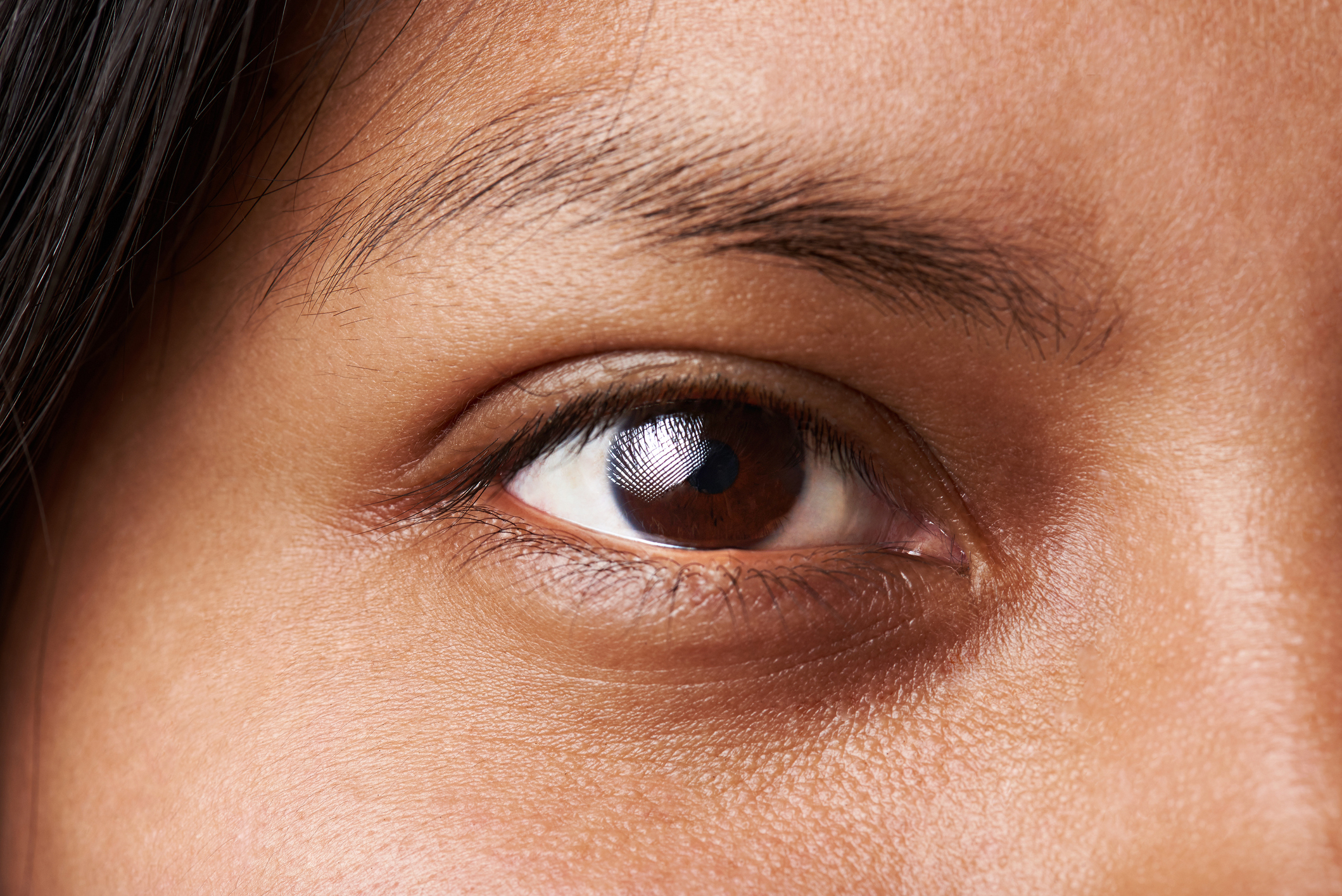 lose up of a patient's under eye