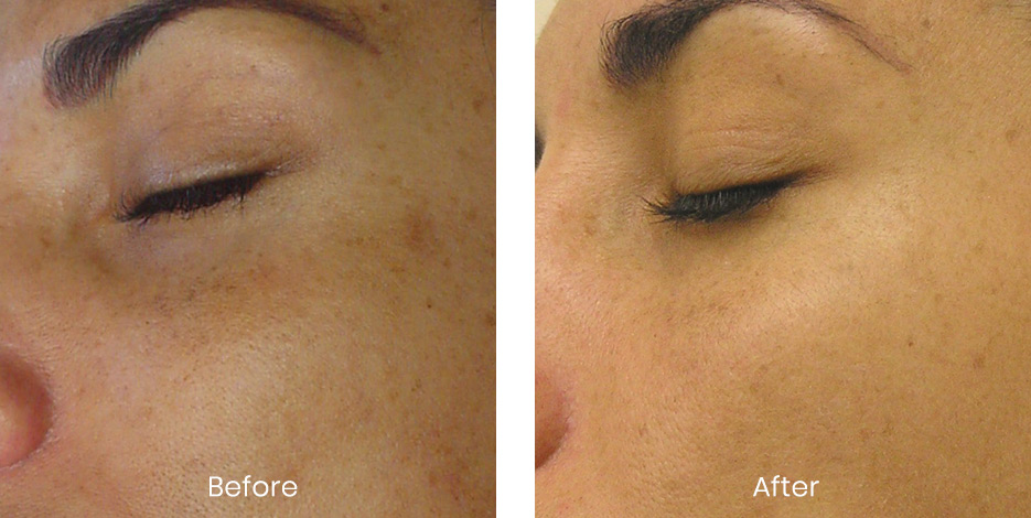 Hydrafacial before and after photo