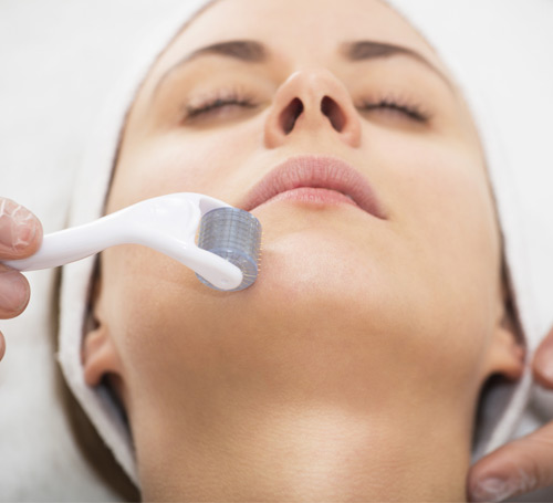 woman getting microneedling
