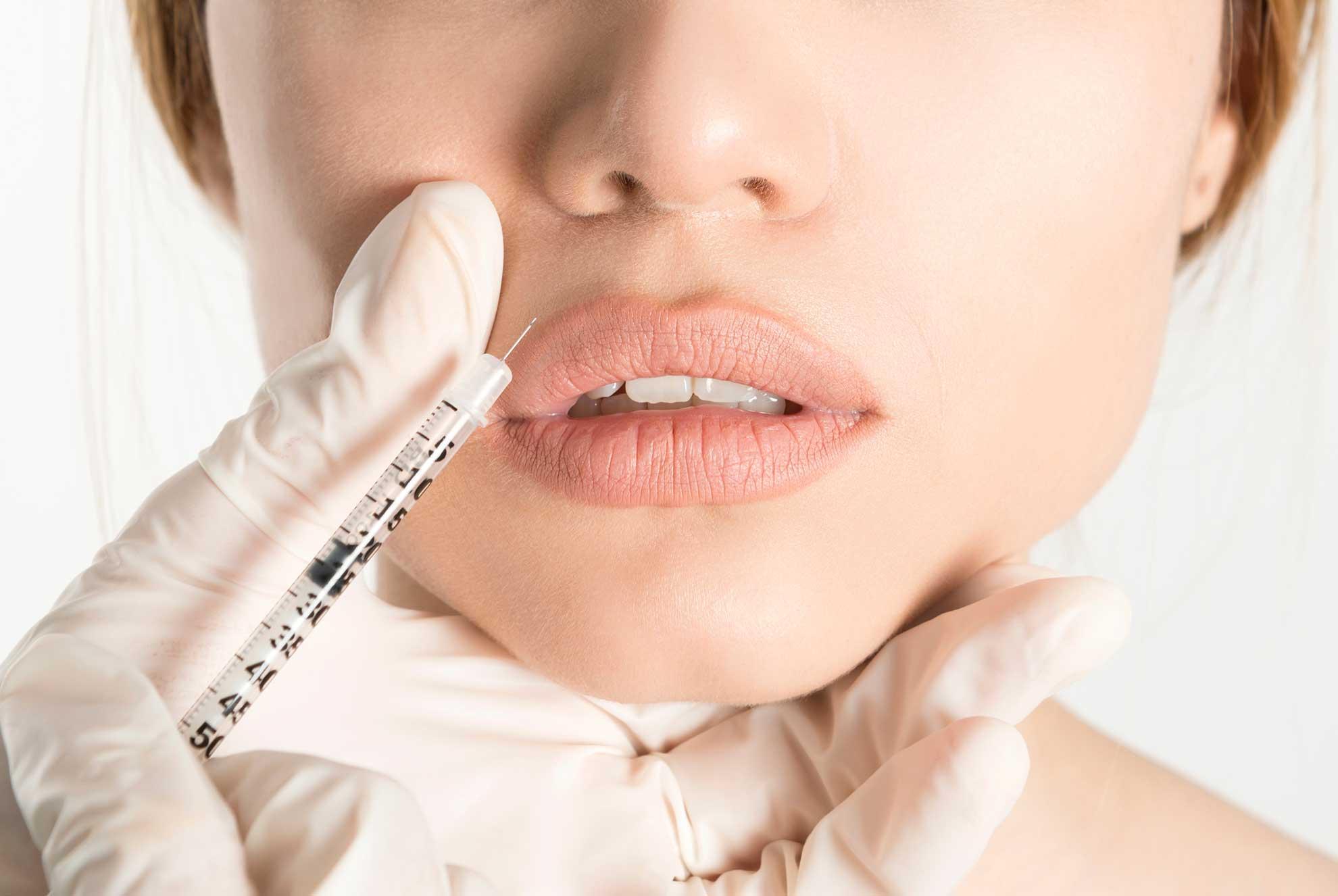 patient getting a lip filler