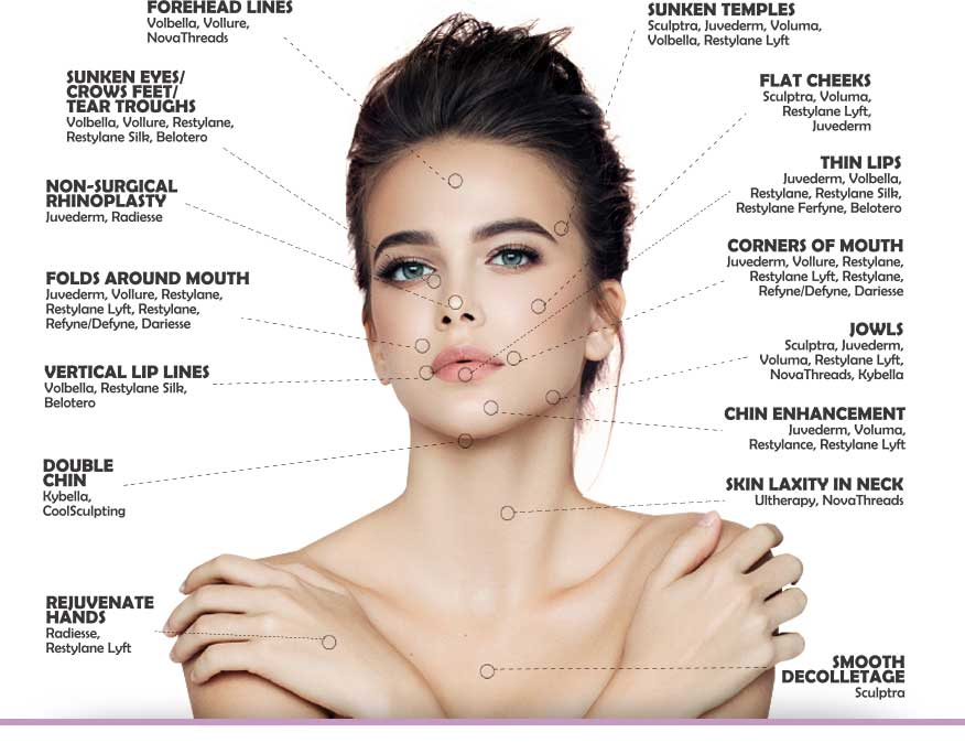 a diagram of cosmetic surgery on a female's face