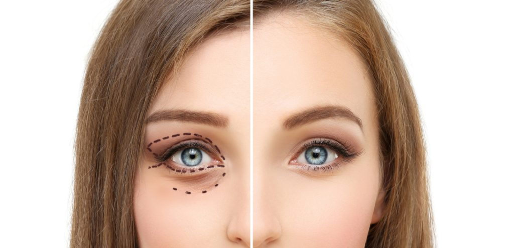 Cosmetic Surgery in Kendall