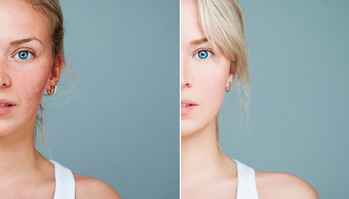 a before and after rosacea treatment