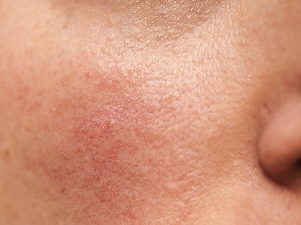 Rosacea on human skin, closeup