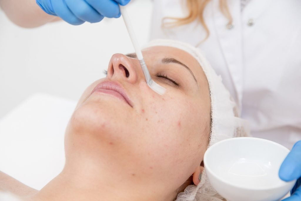 Adult Woman Receiving Skin Chemical Peel Treatment at Dermatologist