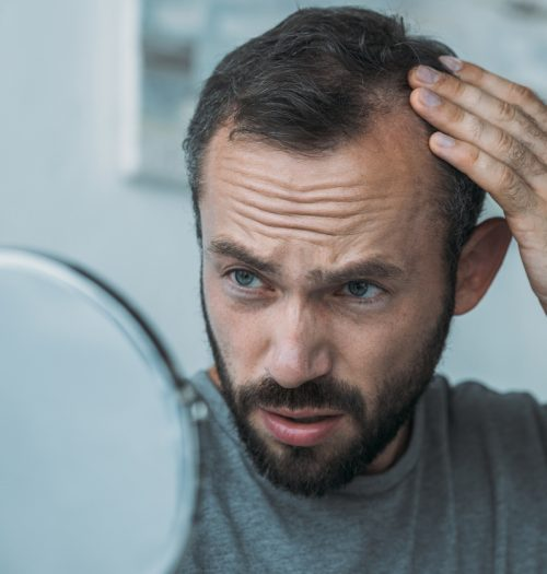 Man suffering from hair loss gives a concerned look at his reflection.