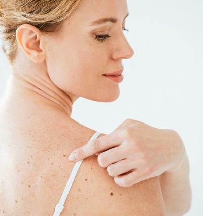 Skin-Neoplasm-Longwill-6