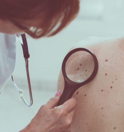 Skin-Neoplasm-Longwill-8