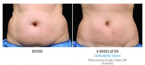 Before and after pictures of a patient who did CoolSculpting